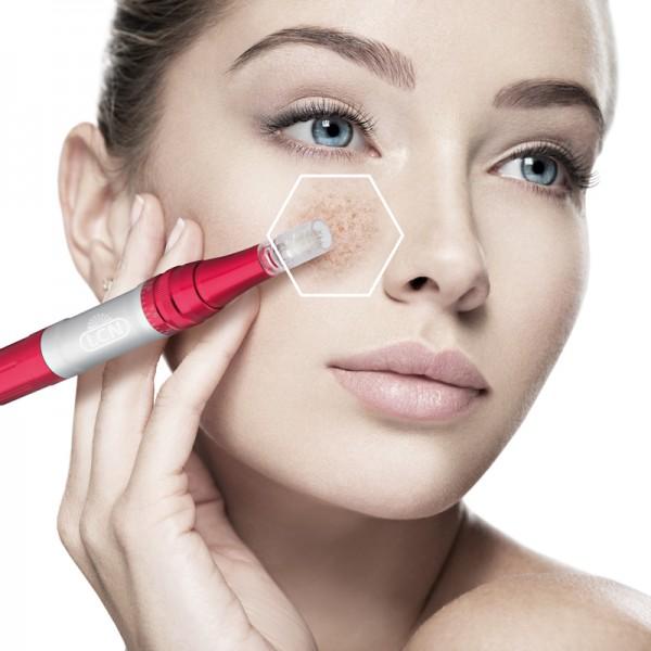 LCN micro needling facial